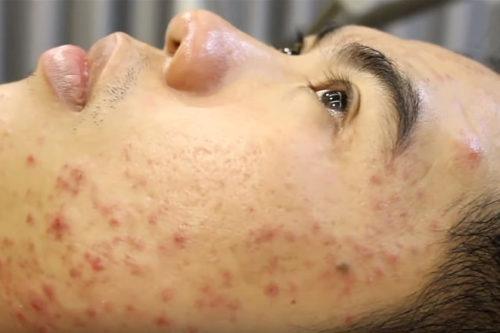 Чистка лица у косметолога: клуб любителей посмотреть на это (видео)