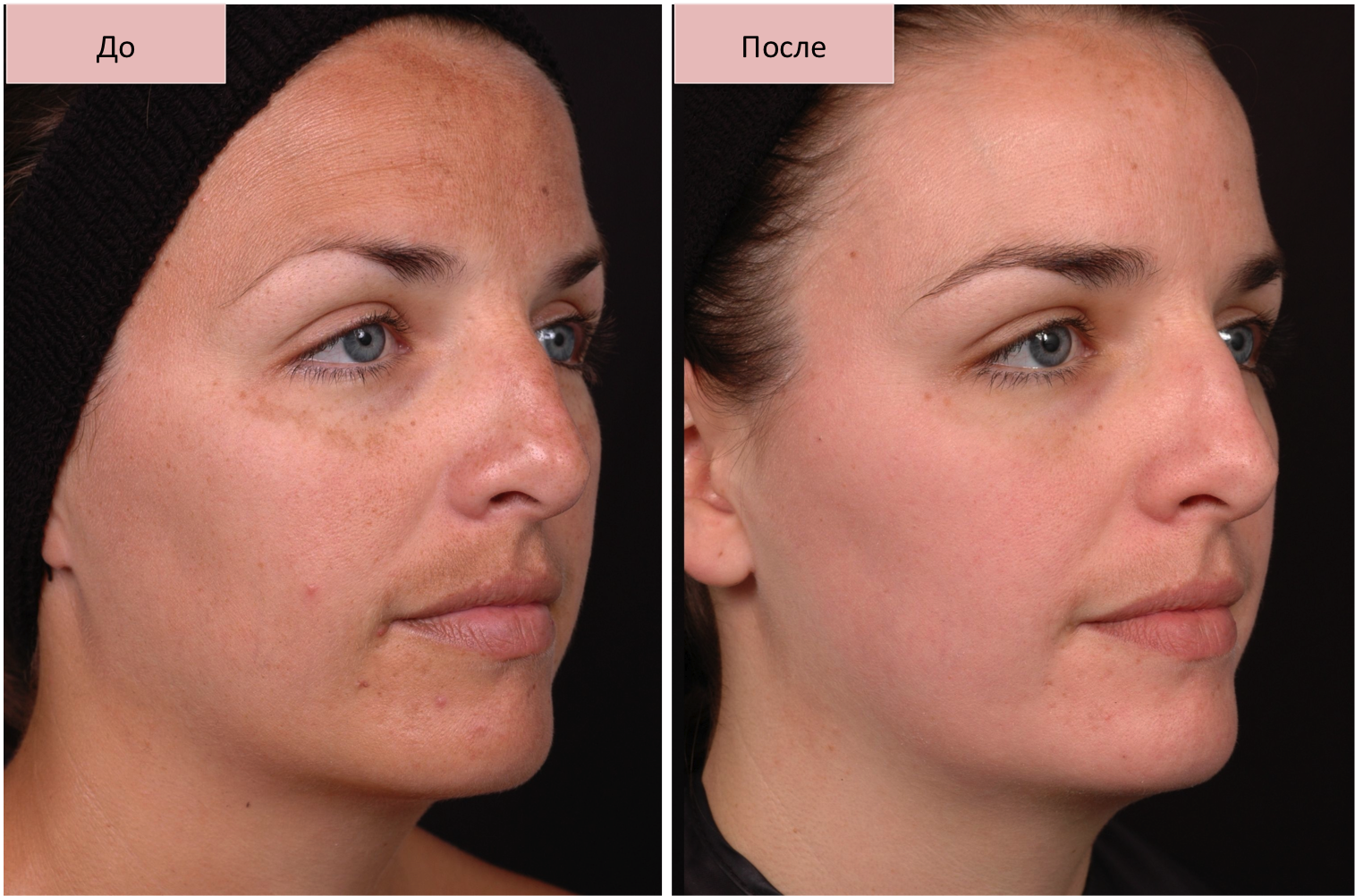 Гиперпигментация кожи причины появления и методы