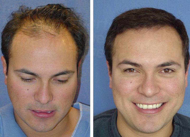 другие вязаные фото до и после пересадки волос самых необычных