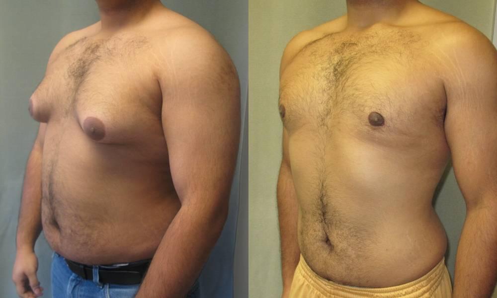 Как похудеть в грудях мужчине