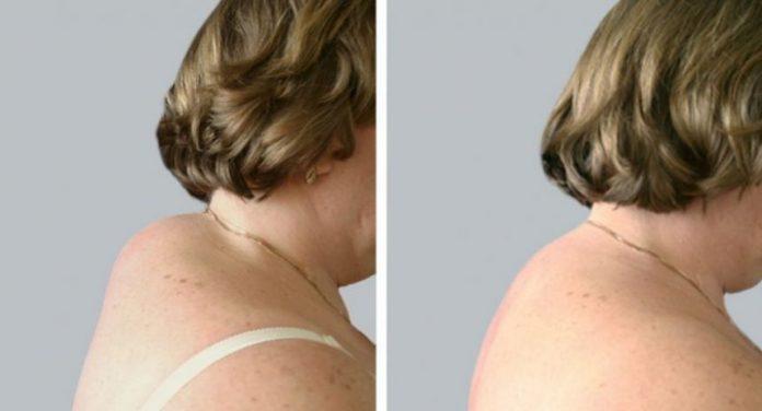 Вдовий горбик: до и после
